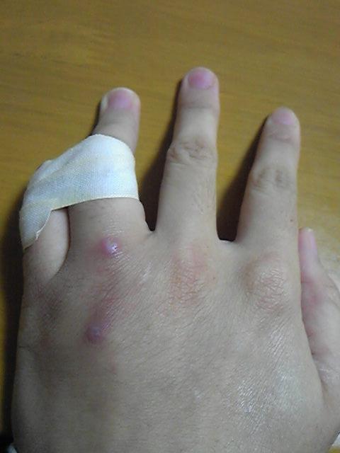 指デーピングの図