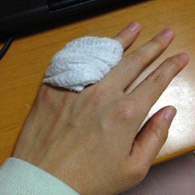 怪我していたときの私の手