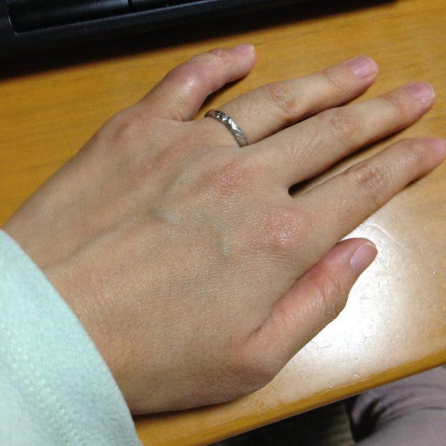 怪我していない私の手
